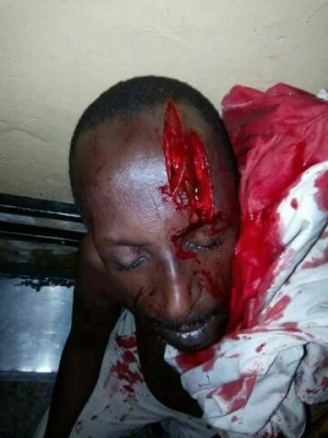 Militants Attack Legendary Hausa Movie Producer & Actor Sheriff Ahlan(Graphic Photos)